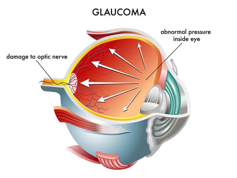 Glaucoma Chart